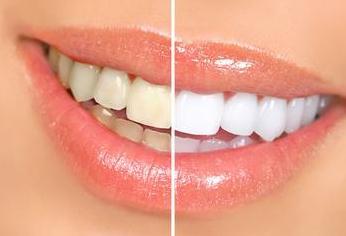 牙齿变色的原因有哪些