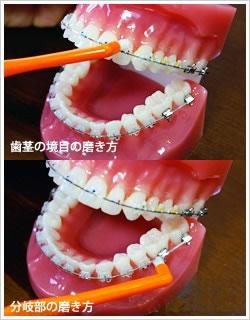 如何使用牙线_带了牙套该如何刷牙?-牙齿矫正-太原尤根口腔