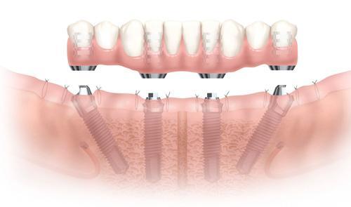 牙齿疾病结构图